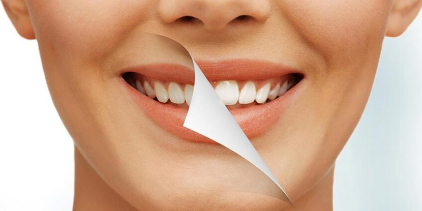 Fix Teeth Imperfections